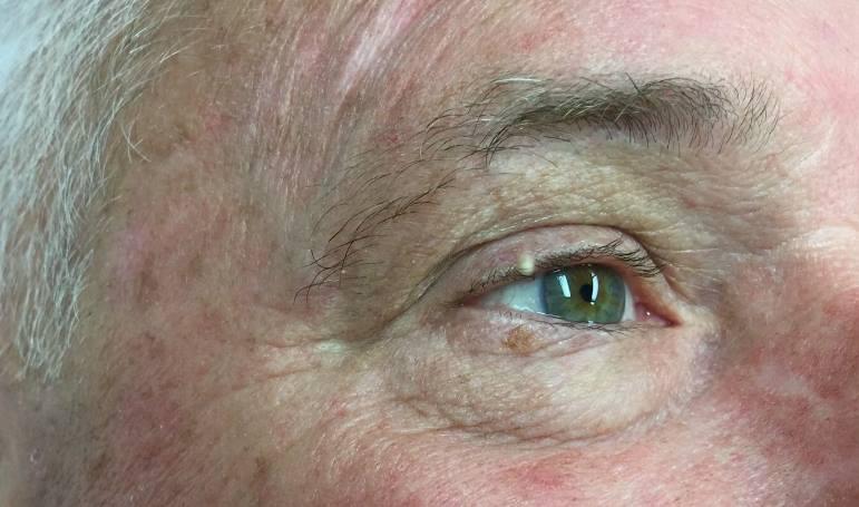 kaszak na oku