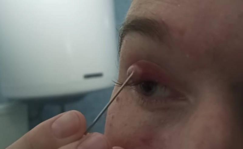 kaszak w kąciku oka